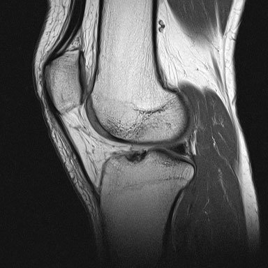 X-ray image of my broken knee